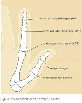 Artrose Artritis Mcp Gewricht