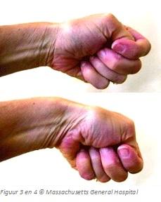 corticosteroiden injecties bijwerkingen